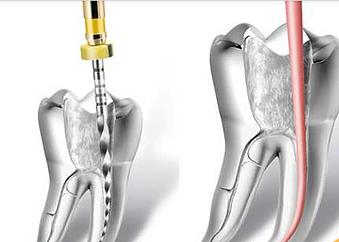 endodoncia rotatoria clinica dental mockup tudela