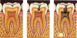 endodoncia rotatoria mecaniza