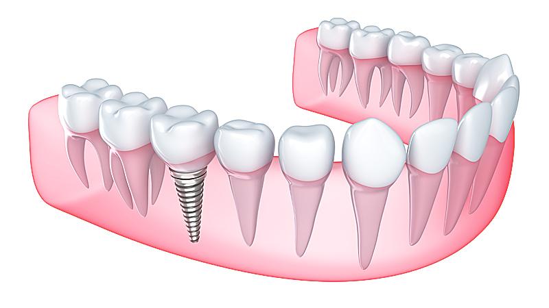 implante clinica dental tudela