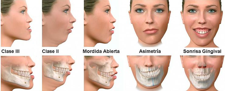 ortopedia clinica dental  tudela mockupdental