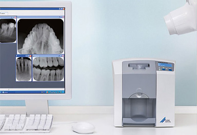 Radiologia periapical digitalizada