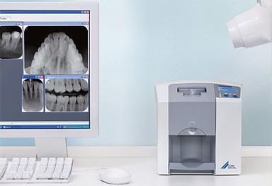 Radiologia periapical digitalizada