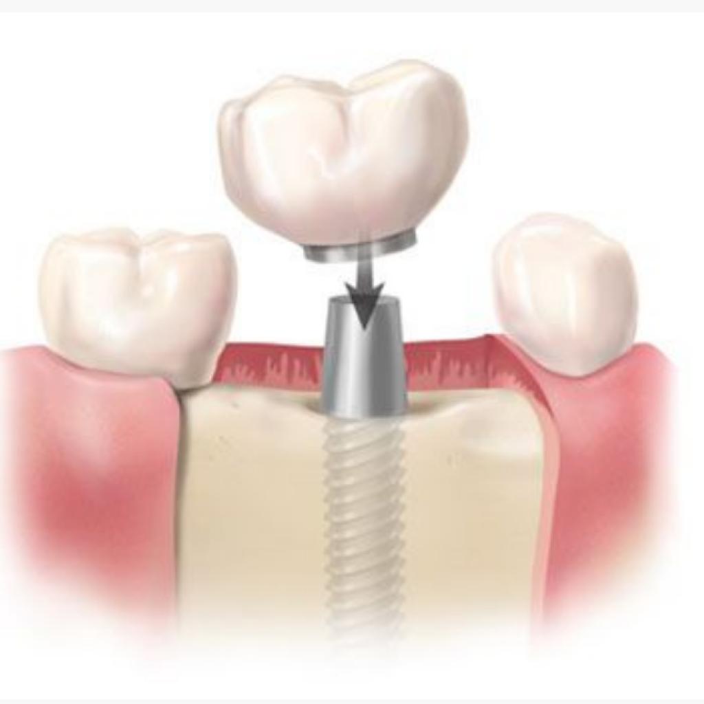 Colocación del implante- Mockupdental